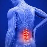 Pilates en Revalidatie - rugpijn
